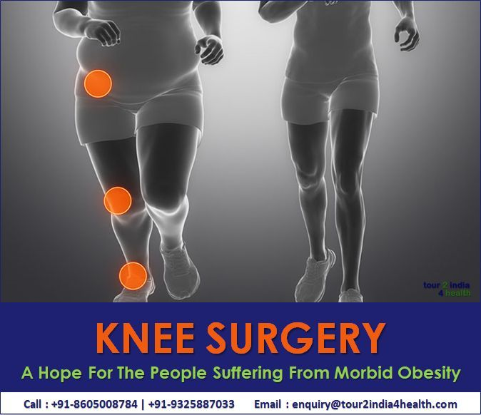 Knee Surgery A Hope For The People Suffering From Morbid Obesity Hope Knee Morbid Obesity People Suffering Surgery Knee Surgery Obesity Surgery