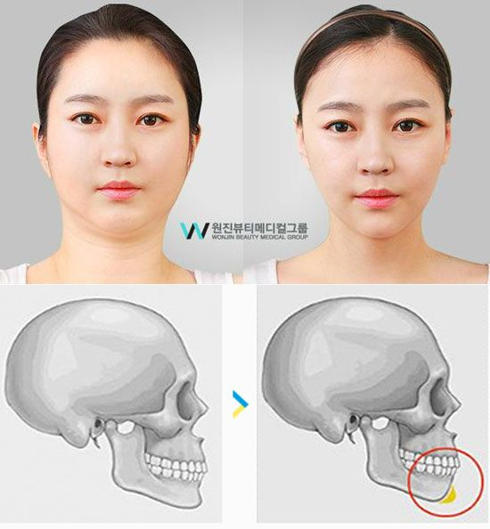 Chin Augmentation | http://plasticsurgeryfact.com/south-korean-plastic-surgery-cost-and-procedures/