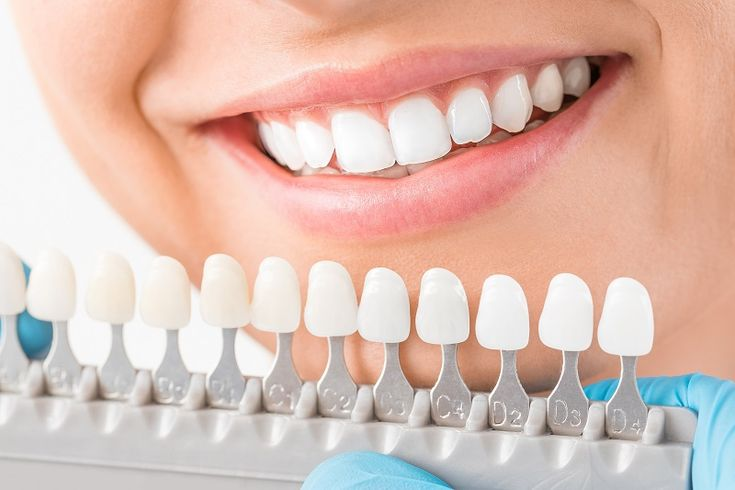 Overcome Everything with A Big White Smile #CosmeticDentures