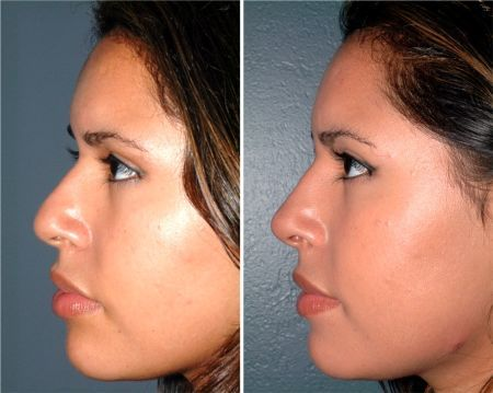 Cost Of Rhinoplasty With Insurance