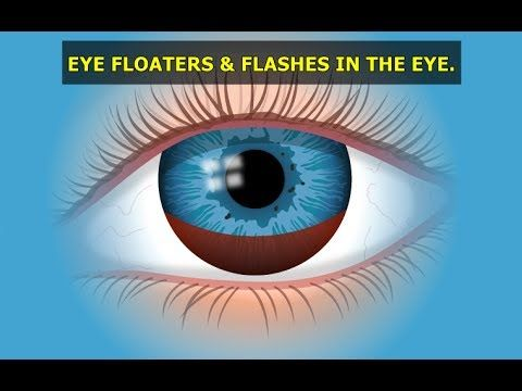 Eye Floaters and Flashes in The Eye : What Are Eye Floaters and Flashes ...