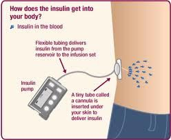 How an insulin pump works.