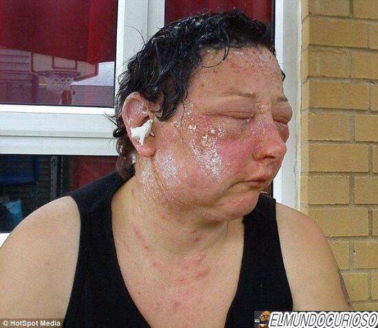 Un tinte de cabello provoca esta reacción alérgica - http://www.elmundocurioso.com/2014/10/un-tinte-de-cabello-provoca-esta-reaccion-alergica.html