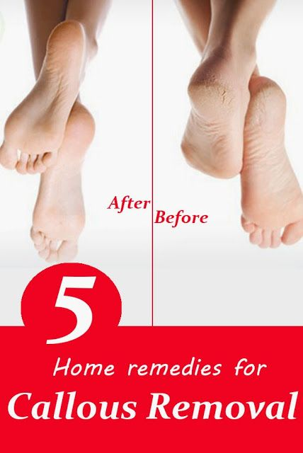 How to get rid of calluses 5 Home remedies for callous removal