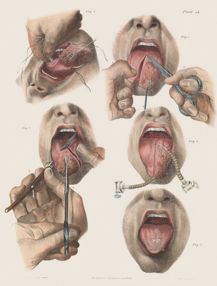 Surgery for cancer of the tongue.