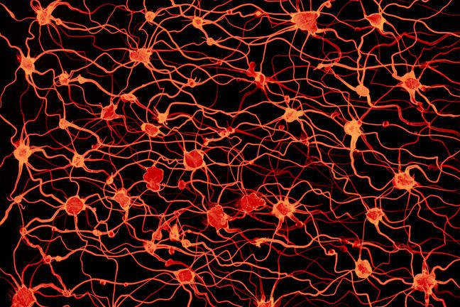 Image of a group of neurones on black background