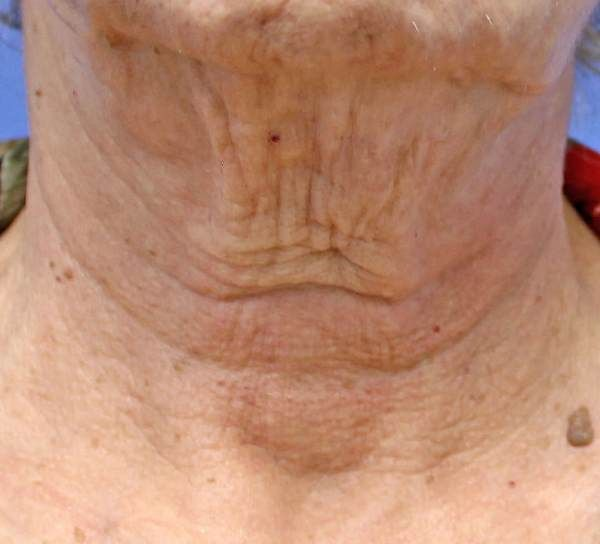 Prevent Neck Wrinkles  Does your neck have crepey skin and wrinkles? Here are some helpful tips to reduce your wrinkles and crepey skin!