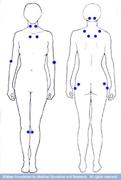 The 18 tender points associated with fibromyalgia occur in symmetrical pairs from the back of your head to your inner knees.
