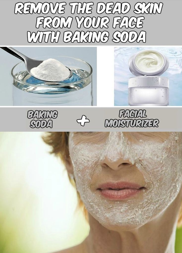 Remove the Dead Skin from Your Face with Baking Soda - WomenIdeas.net