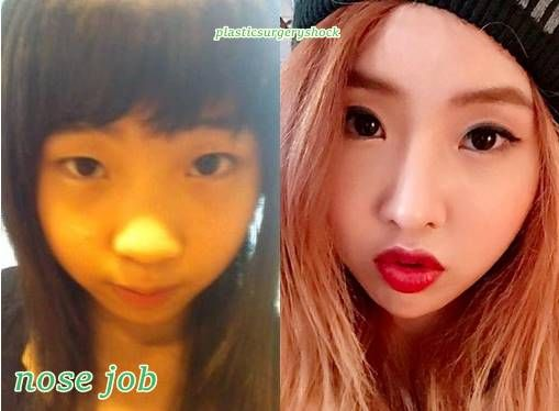 Minzy 2NE1 Plastic Surgery Before and After