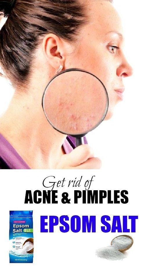 Treat acne with epsom salt