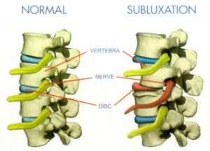 subluxation neck ehlers danlos syndrome. also good info on other issues with eds.