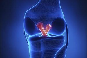 How to Improve After ACL Reconstruction Surgery