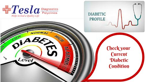 Diabetic profile includes various tests like #BloodSugarTest , #CompleteUrineExamination, #BloodUreaTest, #LipidProfile, Urine Micro Albumin, Serum Creatinine test, #CompleteBloodPicture, X – Ray Chest, #ECG and various other tests. Check your current diabetic condition @ Tesla Diagnostics For details click on : http://goo.gl/40HVSK