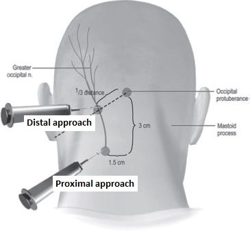 Greater occipital nerve block injections