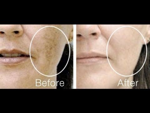 Clear Acne Scars, Dark Marks,Remove Dark Spots ,Home Remedy for Black Spots on Face - YouTube