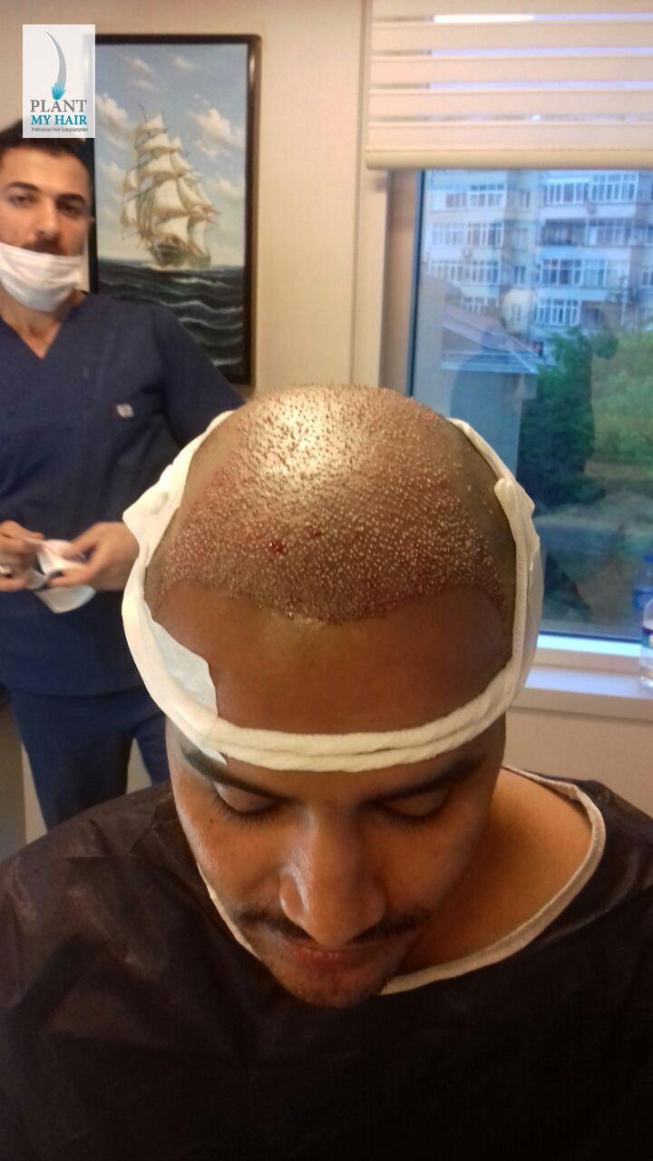 عملية زراعة الشعر في تركيا داخل مركز بلانت ماي هير