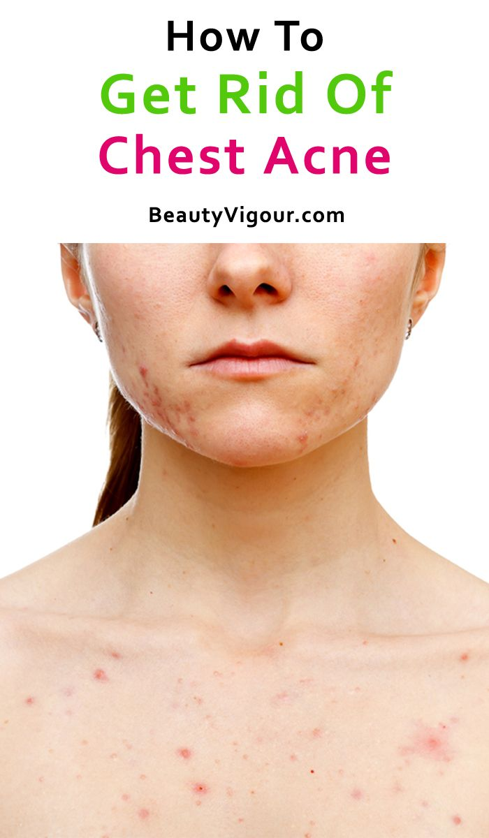 How To Get Rid Of Chest Acne And Scars