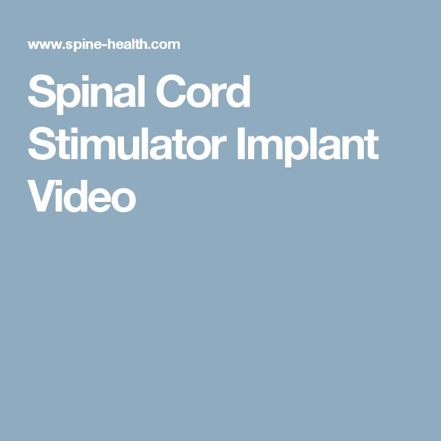 Spinal Cord Stimulator Implant Video