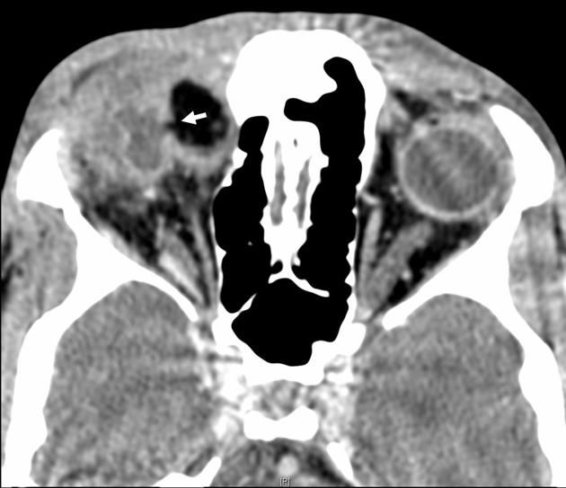 Ruptured orbital dermoid cyst | Radiology Case | Radiopaedia.org