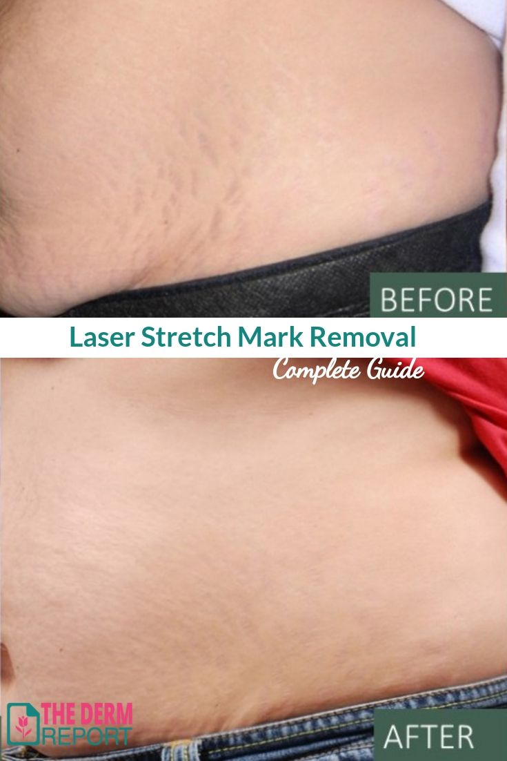 Laser Stretch Mark Removal A Guide To Laser Treatments For