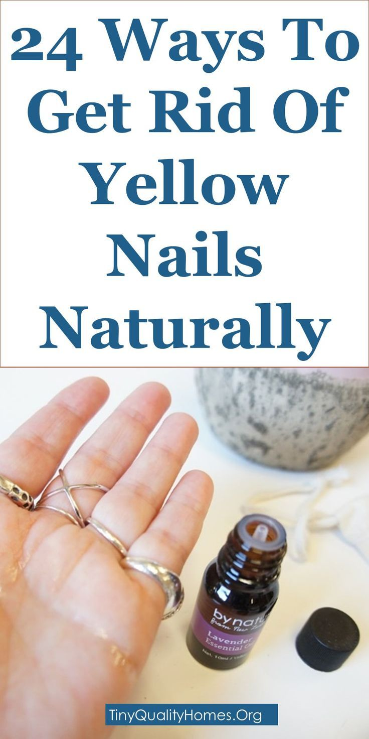 How To Get Rid Of Yellow Nails 24 Home Remedies This Article Discusses Ideas On The Following How To Get Ri Nagelpilz Hausmittel Gelbe Zehennagel Nagelpilz