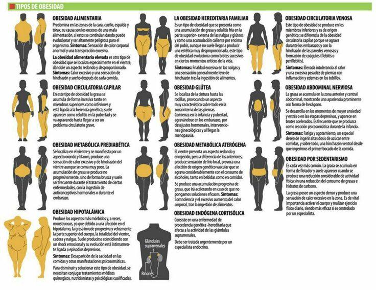 Tipos de obesidad | Tips nutricionales - Dietas | Pinterest