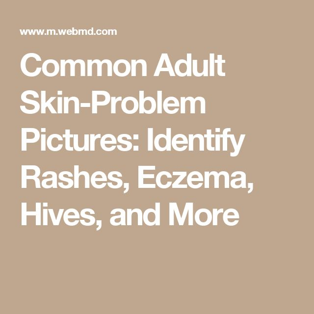Common Adult Skin-Problem Pictures: Identify Rashes, Eczema, Hives, and More