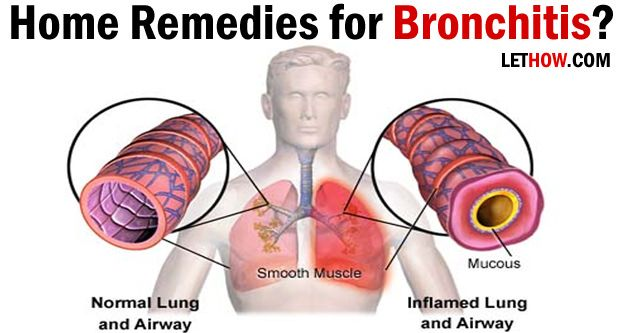Home Remedies for Bronchitis Treatment Natural home remedies for bronchitis. How to get rid of bronchitis? Cure bronchitis fast. Ways to prevent chronic bronchitis. Treat bronchitis cough.