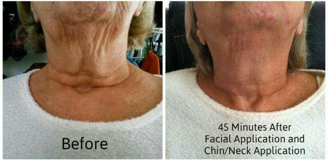 Real people getting wrapped, and getting real results! This is what we are talking about!! Making sure every person who uses any of our products is looking better and feeling more confident about themselves!  Tighten, tone, and firm... getting insane and lasting results in 45 minutes! Stop just liking my posts and wishing you could do it... just take a chance! Our company is called It Works for a reason!! :)  Contact me today and get 4 for $59! Email: beachgrl_09@yahoo.com