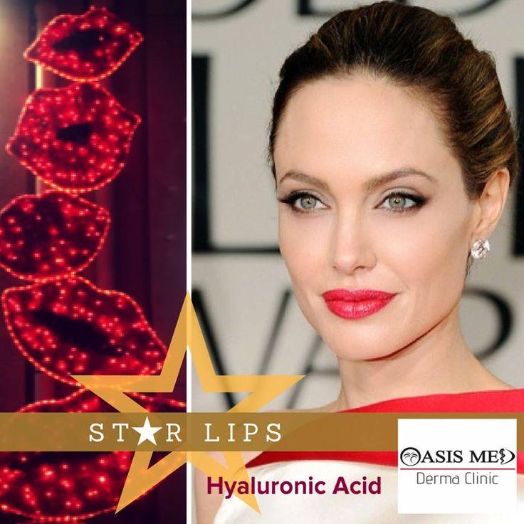Zουμερά χείλη... κατευθείαν από Hollywood!! 👄👄 Καλωσορίζουμε τον #Φεβρουάριο με τη λάμψη των Celebrities, χάρη στη θεαματική (Lunch Time 10'🕑) Θεραπεία Αυξητικής Χειλιών με #Υαλουρονικό! ☎ (+30)2810 301777  Hyaluronic acid Lip filler    Hollywood trend for juicy lips! - #χείλη #αυξητική #χειλιών #δερματολόγος #lipfillers #Αισθητική #δερματολογικό #κρήτη #ηράκλειο #άγιοςνικόλαος #ρέθυμνο #LipAugmentation #filler #HyaluronicAcid #χειλάκια