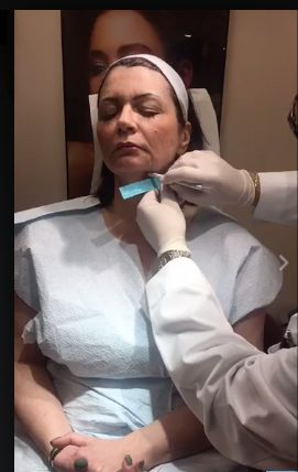 Watch JUVA LIVE videos on our Facebook page - JUVA Skin & Laser Center. MEET the New, Non-Surgical InstaLift ~ The FACELIFT with NO RECOVERY TIME! InstaLift Treatment performed LIVE by Dr. Katz on our JUVA Facebook page. Call us for questions and scheduling ~ 844-221-6100