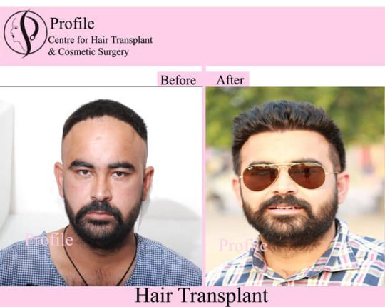 People who are facing hair loss problems and want to know about hair loss causes and hair transplant technique, must click on the link. For details, please visit our website.