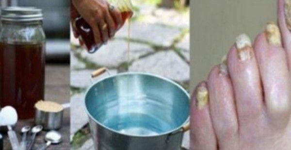 To σούπερ ελιξήριο με μόλις 2 υλικά που θα σε βοηθήσει να ξεφορτωθείς τους μύκητες των ποδιών μια και καλή!