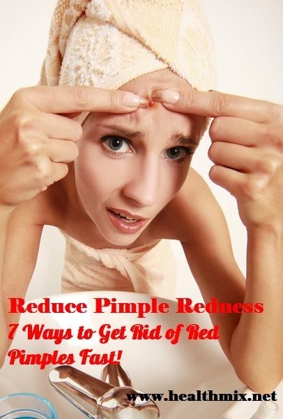 how to rapidly get rid of a pimple