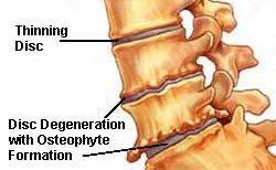 Lumbar Spinal Stenosis   Symptoms, Causes, Treatments - Spinal stenosis causes low back and leg pain