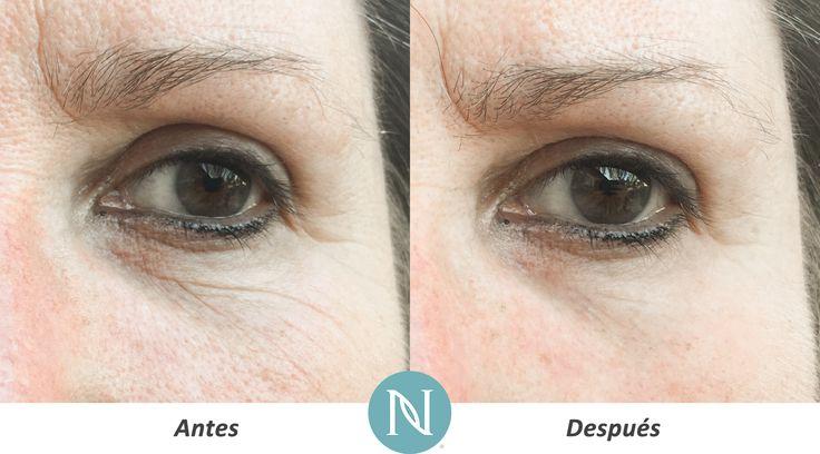 ¡Está en boca de todos: El Suero para Ojos Nerium brinda resultados al momento, en tan solo 30 segundos!  http://www.nerium.com/shop/Pespinosadelosm/products