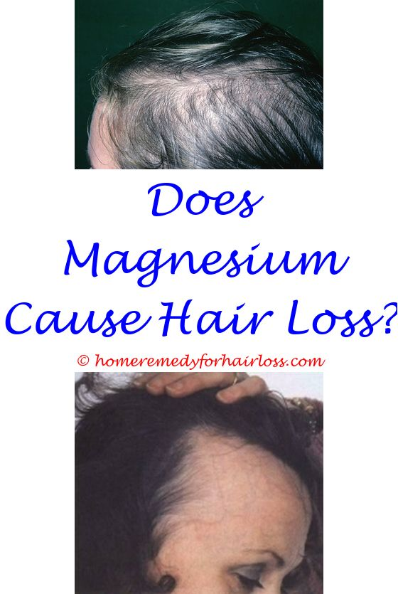 15 best Itchy Scalp Hair Loss images on Pinterest | Hair issues ...
