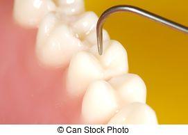 Dental Exam - Photo of Teeth and a Dental Probe. Dental...