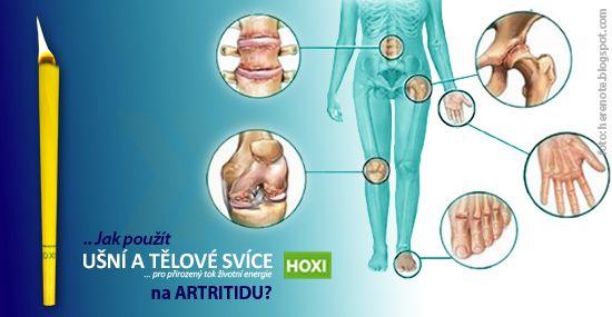 Při akutním projevu artritidy můžeme použít až 4 tělové svíce HOXI denně na místo projevu. Pokud se artritida projevuje na více místech na těle, rozprostřeme aplikaci tak, abychom použili maximálně čtyři tělové svíce HOXI za jeden den. To znamená, že aplikujeme pouze jednu svíčku na čtyři postižená místa. Takto aplikaci provádíme tři po sobě následující dny.