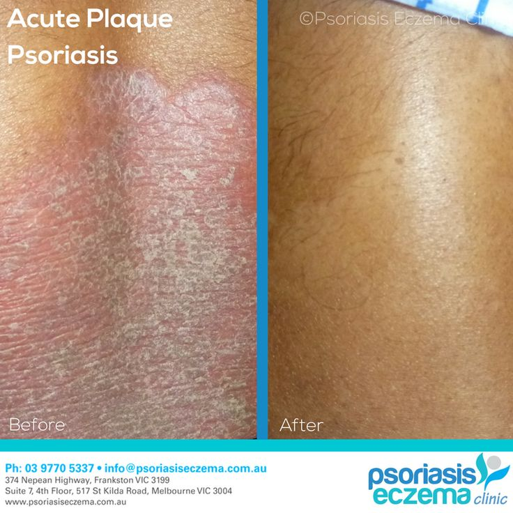 Acute Plaque Psoriasis Before and After Results! After just 4 weeks of treatment the skin is completely clear! At the Psoriasis Eczema Clinic, we provide natural solutions based on medical research to treat the symptoms and address the underlying triggers of skin conditions. Contact us today to find out how we can help you! #integrative #dermatology #natural #treatment #solutions #psoriasis