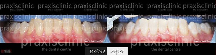 Dazzling results of #teethwhitening , with immediate #teeth #whitening Laser Technology . The entire procedure finished in under and hour by #cosmetic #dentists at Praxis Dental Clinic . Read and view more such whitening photos and transformations at http://smile-designers-india.com/best-dentist-clinic-teeth-whitening-laser-led-mumbai.asp