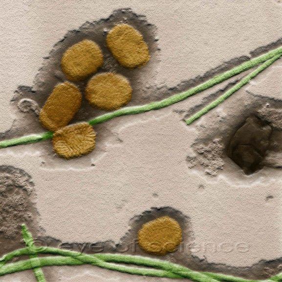 Gambar Virus dalam Perbesaran Microscopic Electron - Das Bild zeigt einige MC-Viren (Molluscum contagiosus) zwischen Kollagenfasern (Bindegewebsfasern) aus einer ausgequetschten Dellwarze. Dellwarzen sind stecknadelkopf- bis erbsengroße, weiße, rötliche oder hautfarbene Knötchen mit glatter und oft glänzender Oberfläche. Dellwarzen kommen besonders häufig bei Kindern vor, insbesondere bei Kindern mit atopischem Ekzem (Neurodermitis), treten aber meisst nur ein Mal auf…
