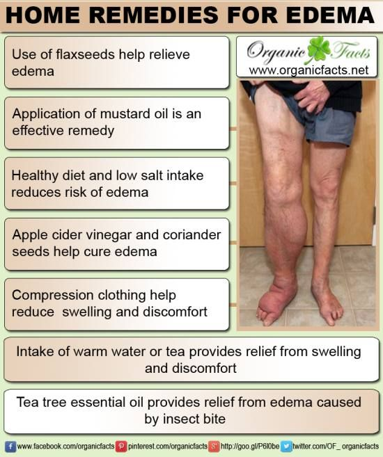 Best Edemacellulitis Remedies Images On Pinterest Natural - Natural home remedies for cellulitis