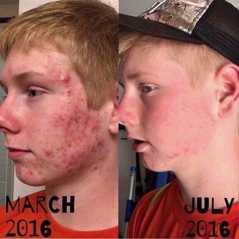 Rodan   Fields Unblemish is the #1 acne product in the U.S. and this picture shows exactly why! If you or someone you know struggles with acne, don't suffer! THIS IS YOUR ANSWER! Plus, you have a 60 day, empty bottle, money back guarantee! There is literally NOTHING TO LOSE! Message me!