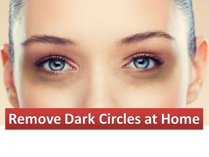 How to Remove Dark Circles Naturally at Home in 5 Minutes ...