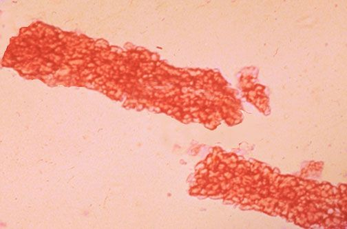 Urinalysis red cell casts assoc with glomerulonephritis