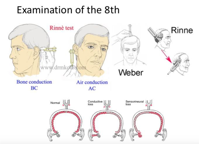 Rinne's and Weber Test