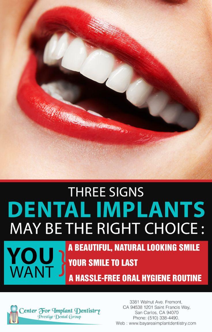 Implants look, feel and function like natural teeth. Visit http://www.bayareaimplantdentistry.com/ to learn more. #dentalimplants #bayarea