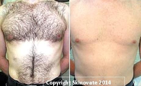 Hair Laser Before and after